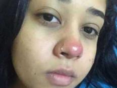 צעירה עשתה נזם באף - וזה נגמר ממש רע