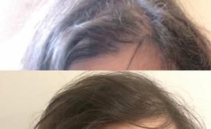 שיער דליל לפני ואחרי