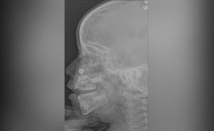סוללה נתקעה באפה של הילדה (צילום: דוברות בטרם, חדשות)