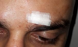 הפציעה של בן לוי (צילום: באדיבות המצולם, חדשות)