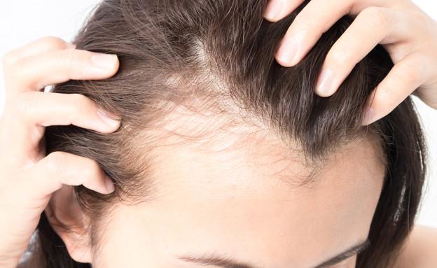 נשירת שיער (צילום:  MRAORAOR, shutterstock)