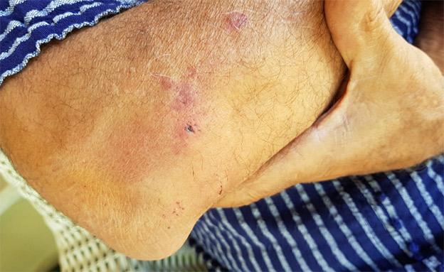 החבלות על גופו של יחיא (צילום: באדיבות המרואיין, חדשות)
