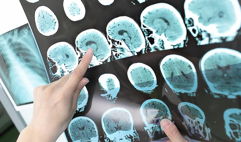 סריקת מוח (צילום: shutterstock)
