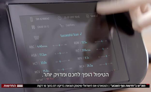 סטארט-אפ ישראלי: תוצאות בדיקת דם ב-10 דקות (צילום: חדשות)