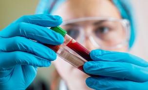בדיקת דם (צילום:  Romaset, shutterstock)