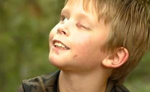 פייק קלרקסון, בן 8, שהותקף על ידי פומה (צילום: Christine and Steve Tan, סקיי ניוז)