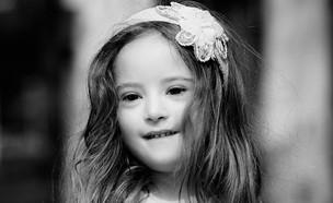 תערוכת צילומים בנושא ילדי תסמונת דאון  (צילום: ליאת מייה לומברוזו)