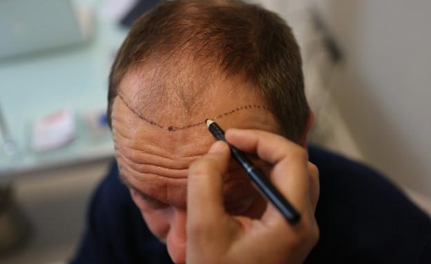 השתלת שיער תורכיה (צילום: shutterstock | ymphotos)