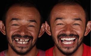 האיש הזה מחזיר את החיוך לאנשים שזקוקים לו (צילום: אינסטגרם por1sorriso)