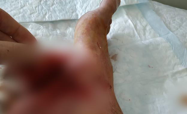 שבוע לאחר התאונה של אדם אורי (צילום: אדם אורי)