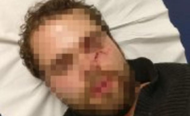 סטודנט ישראלי הותקף במטרו בצרפת כי דיבר עברית (צילום: מתוך עמוד הפייסבוק של חבר הפרלמנט הצרפתי מאיר חביב)