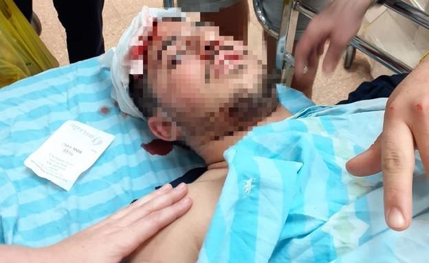 התקיפה בבאר שבע (צילום: צילום פרטי)