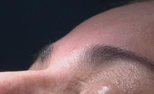 טיפול פנים בוטוקס (צילום: החדשות 12)