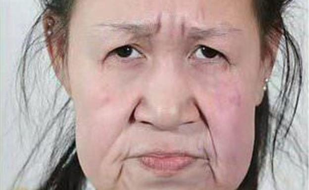 השתלת פנים (צילום: Shenyang Sunline Plastic Surgery Hospital, טוויטר\@mayankg406, )
