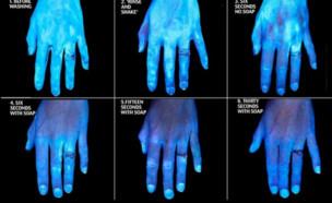 ניסוי ידיים אולטרה סגול
