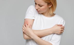 מחלת עור גירוד (צילום: DimaBerlin, shutterstock)