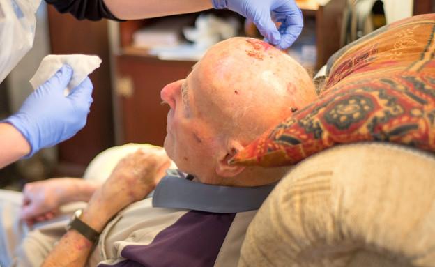 פציעת ראש (צילום: shutterstock )