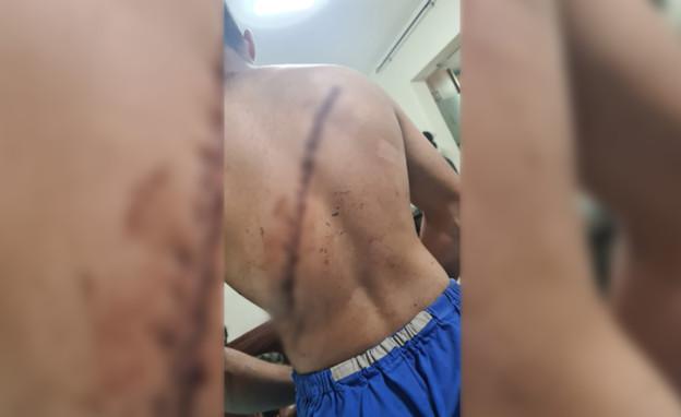 מוחמד נסאסרה, שהותקף בחוף הים