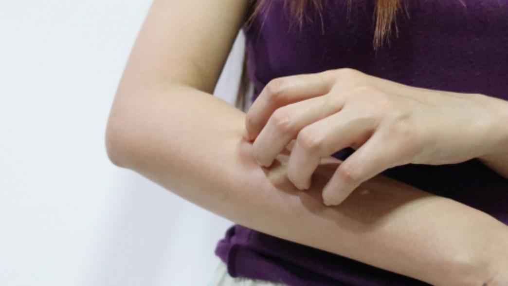 אישה מתגרדת (צילום: Shutterstock -  Ken stocker)