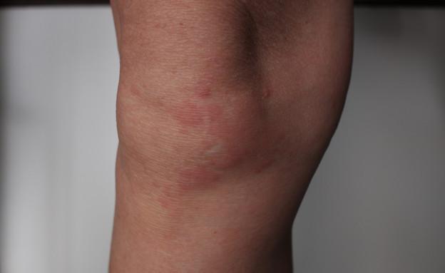 פריחה בעור שנובעת מלחץ (צילום:  Tamotsu Ito, shutterstock)
