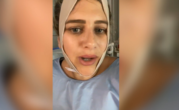 עדי בוזגלו יומיים אחרי ניתוח
