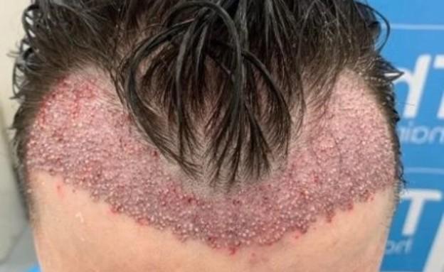 השתלת שיער לוק (צילום: צילום מסך טוויטר)