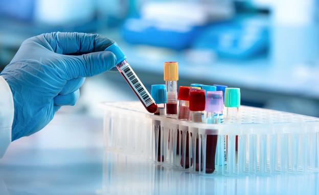 בדיקות מעבדה (צילום: angellodeco, shutterstock)