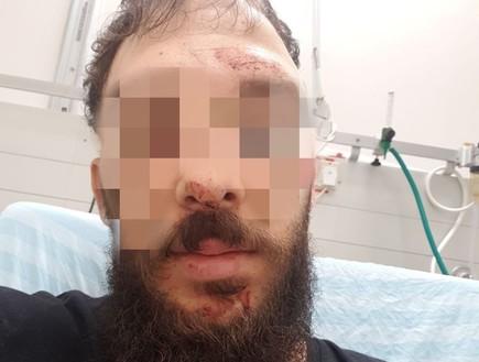 יומיים אחרי: נעצר חשוד בתקיפה האלימה במסעדת נאפיס בבאר שבע