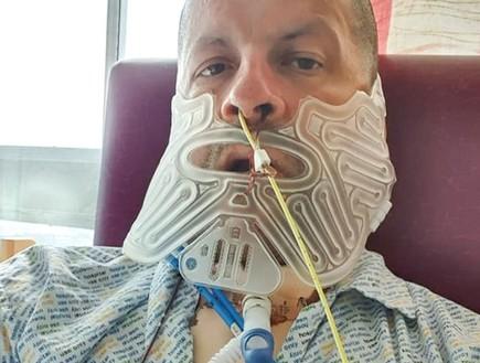 לא ביקר אצל רופא 27 שנים - ונאלץ להסיר את הלסת שלו בגלל גידול נדיר