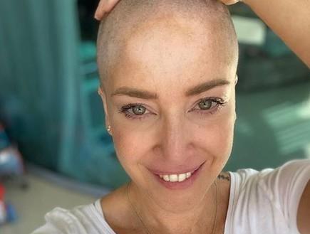 מלכת היופי משתפת בהתמודדות עם מחלת הסרטן
