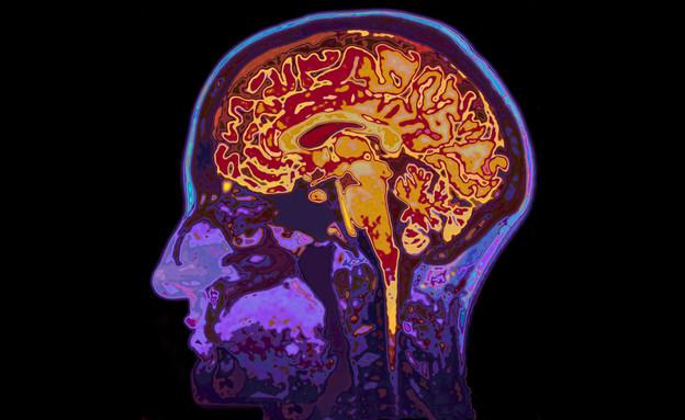 MRI (אילוסטרציה:  SpeedKingz, shutterstok)