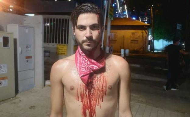 פצוע בהפגנה בתל אביב