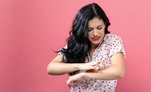 אישה מגרדת (צילום: TierneyMJ, shutterstock)