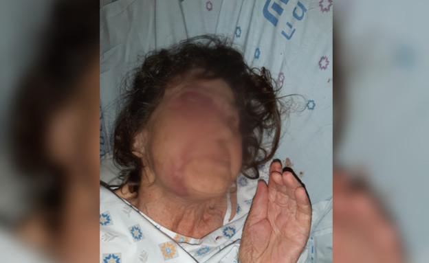 קשישה שהותקפה על ידי המטפל שלה