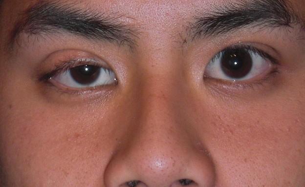 מחלה אוטואימונית  (אילוסטרציה: Andrewya/wikimedia.org)