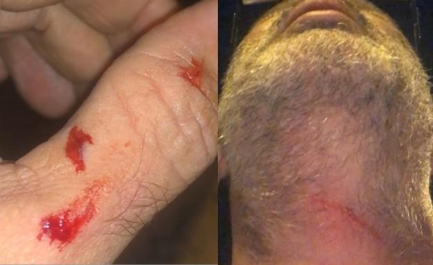 """נהג המונית שהותקף על ידי שלושה נערים (צילום: מתוך """"חדשות הבוקר"""" , קשת 12)"""