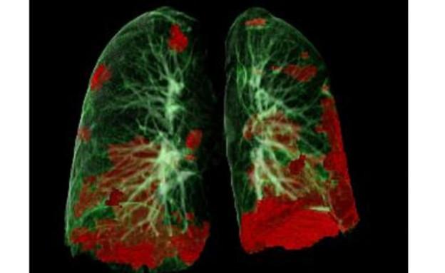 CT ריאות של מטופל (צילום: Gerlig Widmann and team, Department of Radiology, Medical University of Innsbruck.)