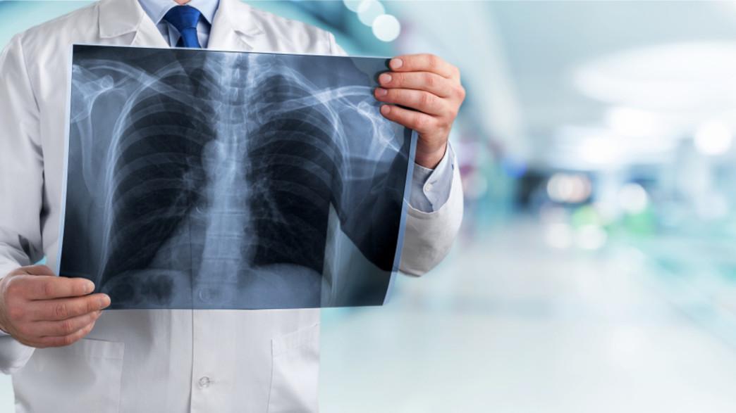 צילום ריאות (צילום:  Billion Photos, shutterstock)