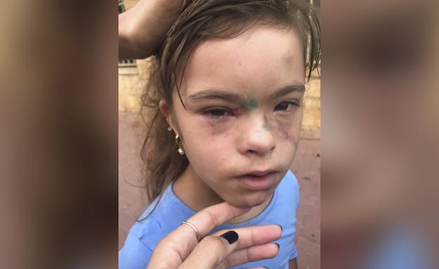 ילדה עם צרכים מיוחדים שעברה התעללות בבית ספר (עיבוד: N12)