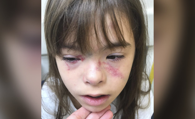 ילדה עם צרכים מיוחדים שעברה התעללות בבית ספר (צילום: N12)