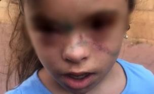 הילדה שהוכתה (צילום: באדיבות המשפחה)
