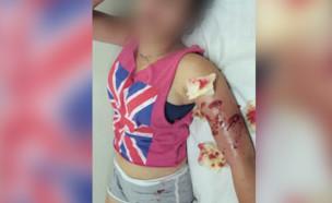 ילדה שננשכה על ידי פיטבול (צילום: באדיבות המצולמת)