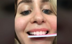 שיוף שיניים בטיקטוק (צילום: miadio/tiktok)