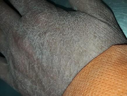 """""""כך נראית כף היד שלי אחרי שהורדתי את הכפפות"""""""