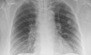 ריאות (צילום: British Medical Journal)