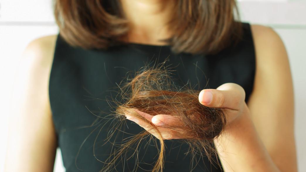 נשירת שיער (צילום: By peeraporn kwanprom Shuttrstock)