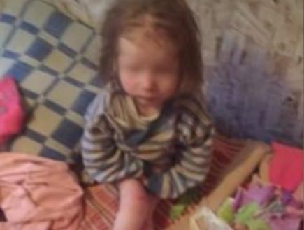 נכלאה בארון, ישנה על כסא עץ ונמצאה במשקל 9 קילו בלבד: בת 7 עברה התעללות אכזרית שהותירה אותה עם ליקויים קשים