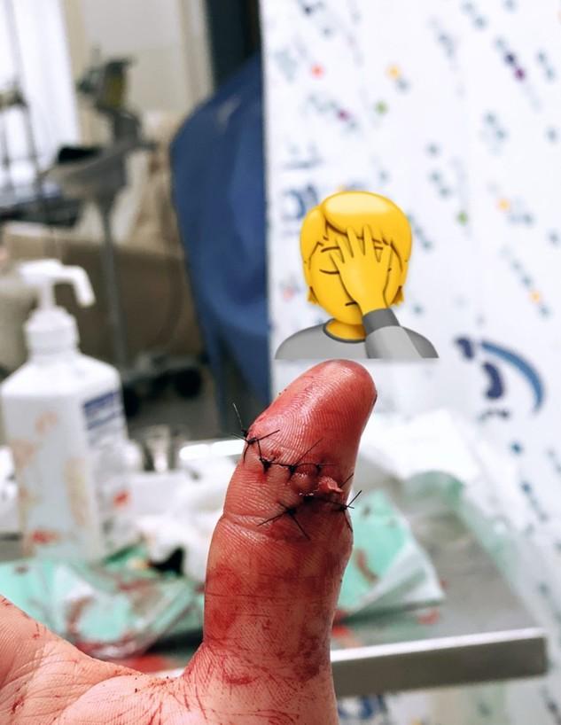 מייקל לואיס בבית חולים (צילום: מתוך עמוד האינסטגרם של מייקל לואיס)