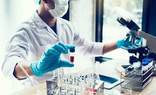 בדיקת מעבדה (צילום: shutterstock By nednapa)