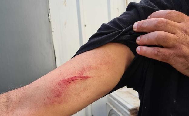 בעל חנות הפלאפל בשוהם שנפצע מעימות עם שוטרים (צילום: ללא, D-MARS, המרכז הישראלי למשימות אנלוגיות במאדים)